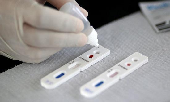 Covid-19: Franca registra 75 mortes, 773 curados e mais de 3,7 mil infectados