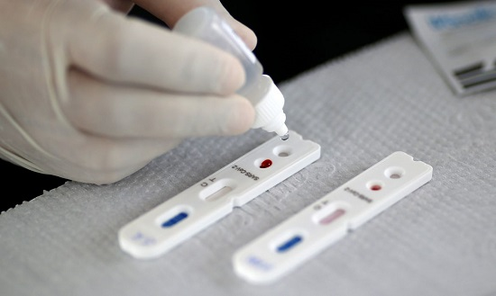 Franca chega a 120 mortes e registra mais 83 casos de coronavírus