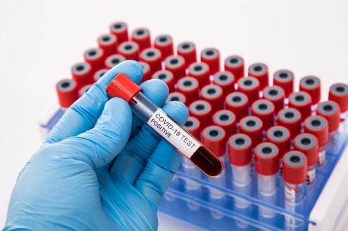 Primeiras doses da vacina de Oxford devem começar a ser produzidas em novembro