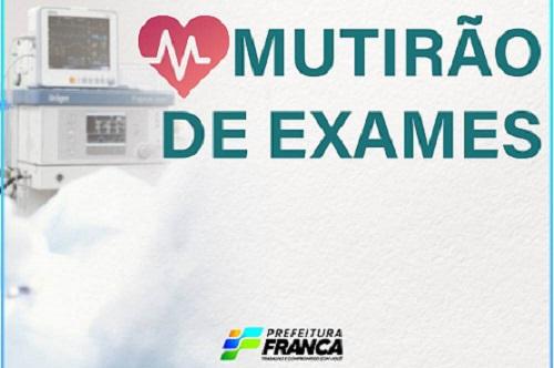 Prefeitura de Franca realiza mutirão de exames e inclui novos procedimentos