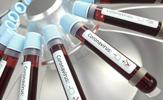 Franca atinge total de 329 óbitos e confirma 230 novos casos de Covid-19